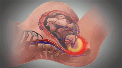 image of head impaction during birth