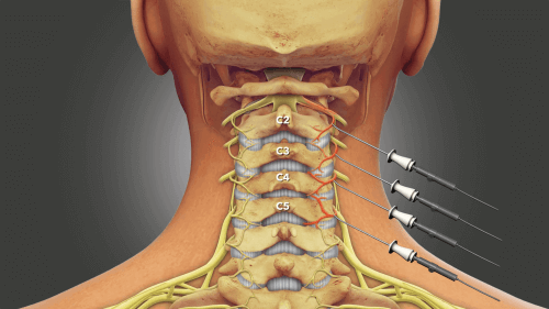 Illustration pointing out spinal discs C2-C5